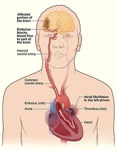 pengobatan sakit jantung, klinikpengobatanalternatif.com